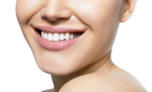 At-home teeth whitening – should you do it?