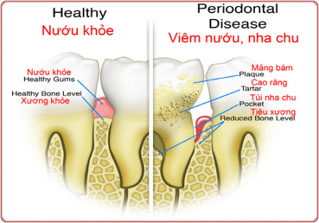 Inflammation of the gums and surrounding structures