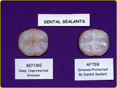 before and after applying sealants