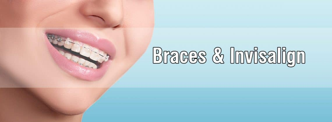 How braces work and the many types of braces?