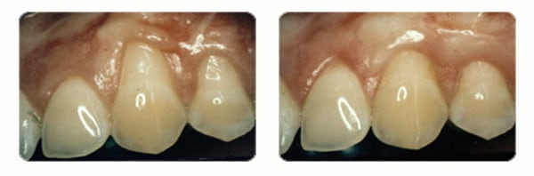 Gum Graft Surgery case 1