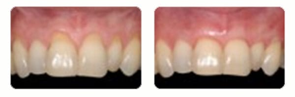 Gum Graft Surgery case 2