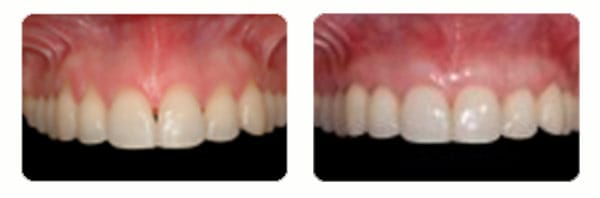 Gum Graft Surgery case 3