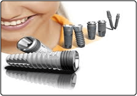 can the body reject a dental implant