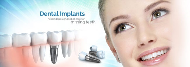 Dental Implant: Definition, Benefits, Types of implant