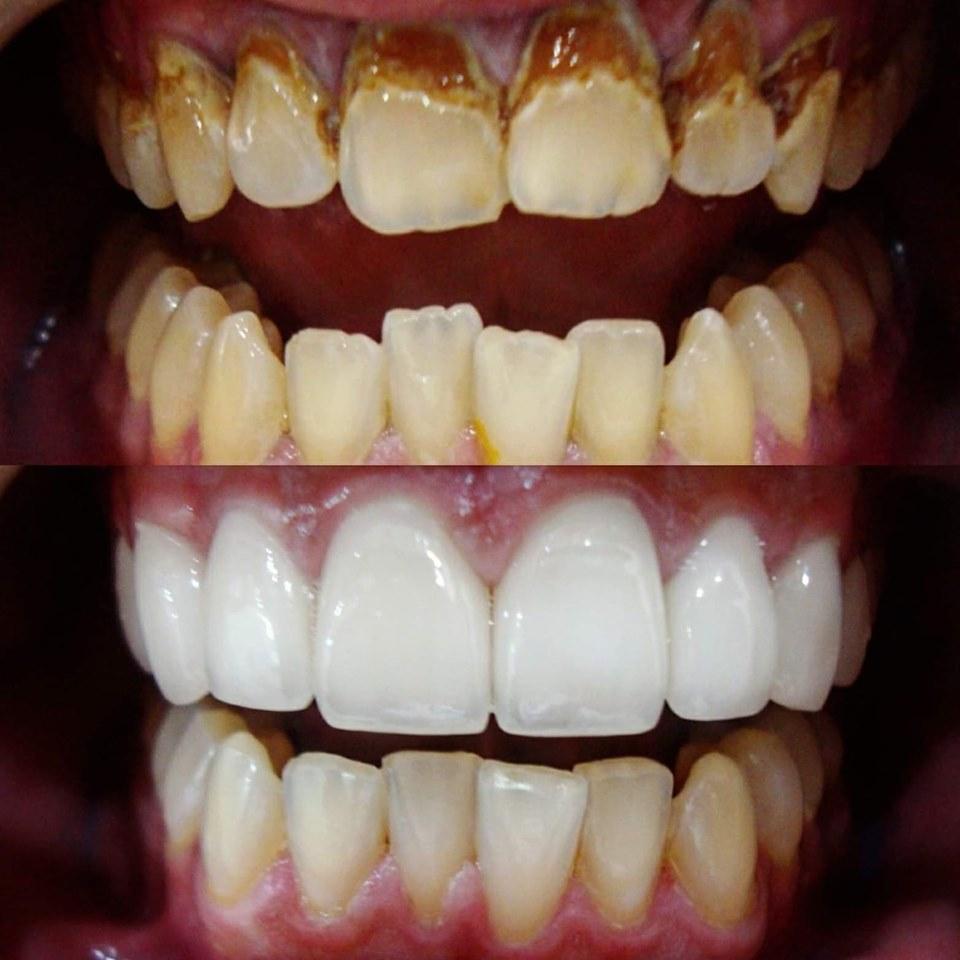 bọc răng toàn sứ zirconia
