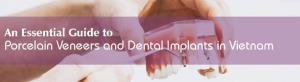 An Essential Guide to Porcelain Veneers and Dental Implants