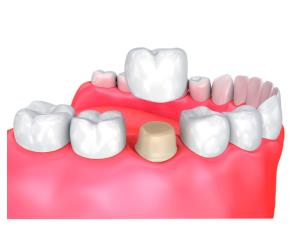 Get to know about many types of dental crowns