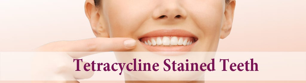 Tetracycline stained teeth: Harm, Causes and Treatment