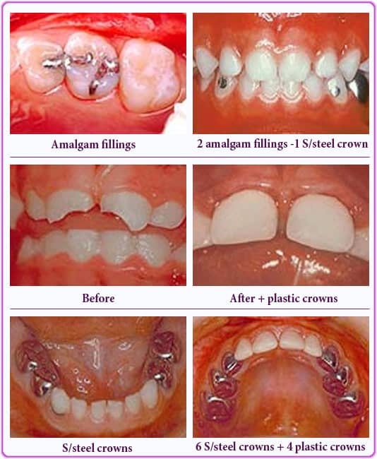 best way of restoring decayed baby tooth