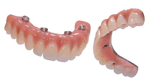 Your immediate teeth with high impact acrylic