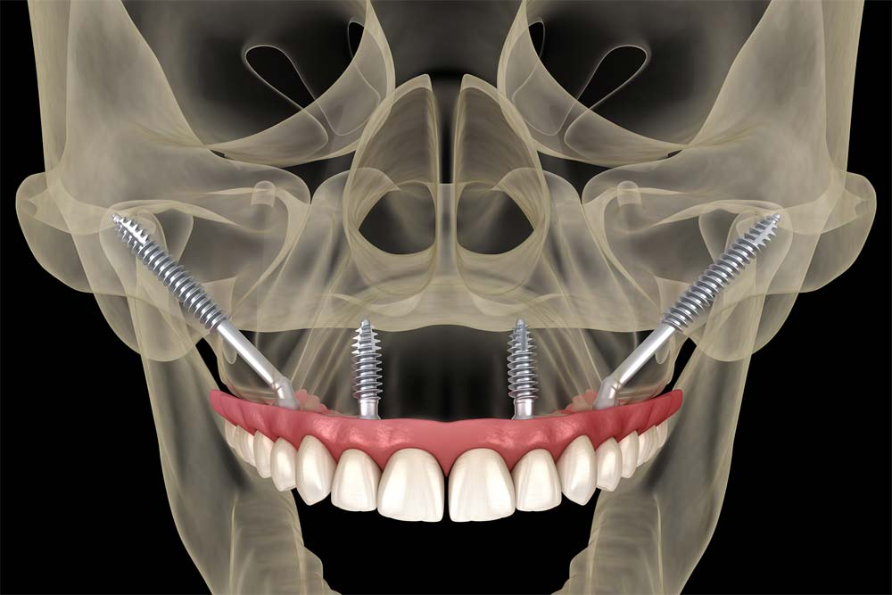Benefits of zygomatic Implant in patients with severe bone loss