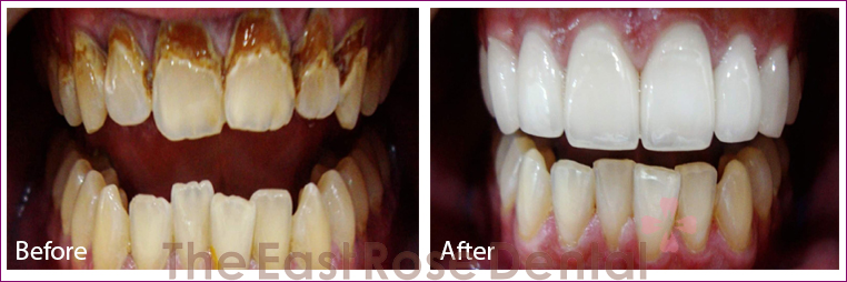 After and Before using Eastrosedental porcelain veneer service