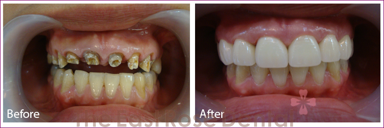 Benefits of All-Ceramic Zirconia Crowns
