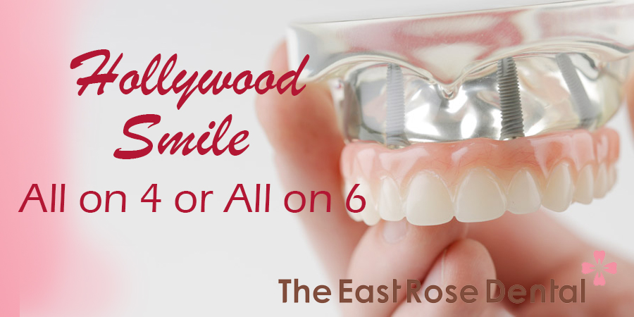 How to get a nice smile – A Hollywood smile for Edentulous