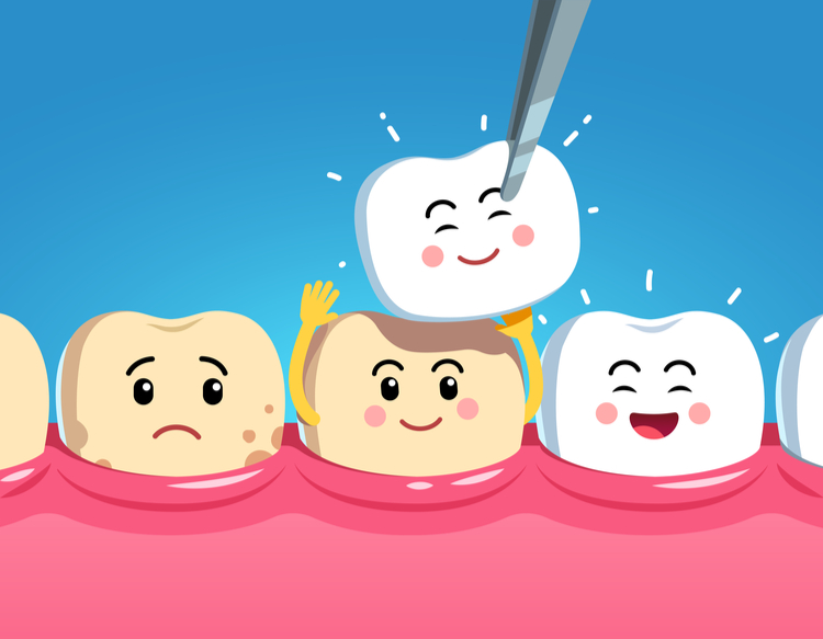 benefit of dental veneers