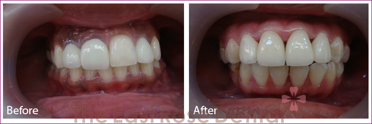 Gum Treatment 1