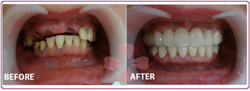 Implant - ceramic Zirconia