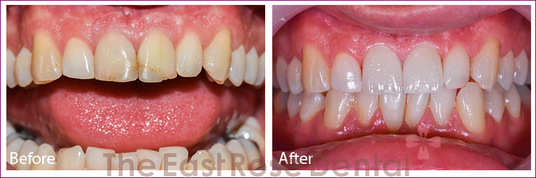 2 front teeth restorations for hot English teacher