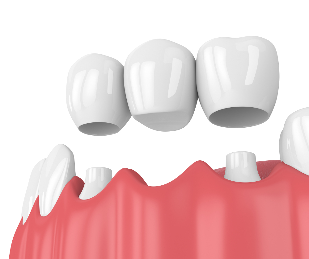 Overview of Dental Bridge Procedure