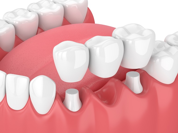 What is porcelain dental bridge? Choose the right type of porcelain bridge