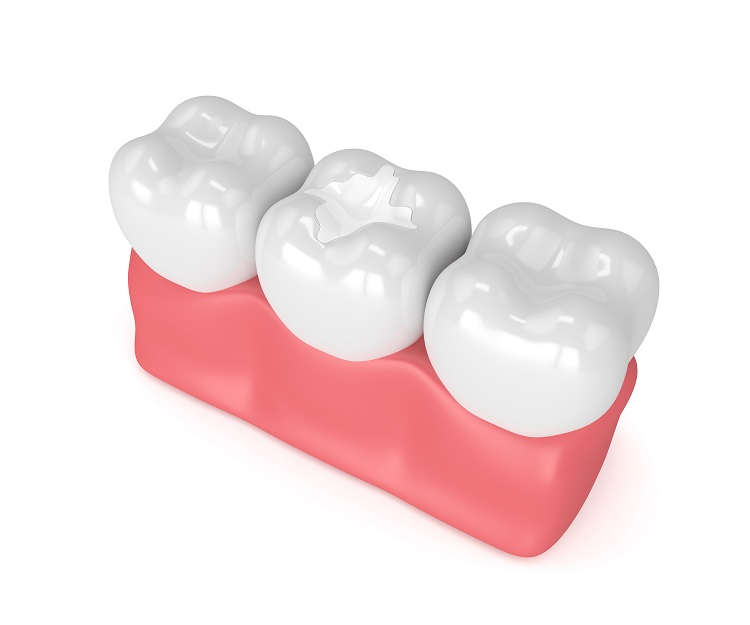 What are the advantages of composite cosmetic dental filling?