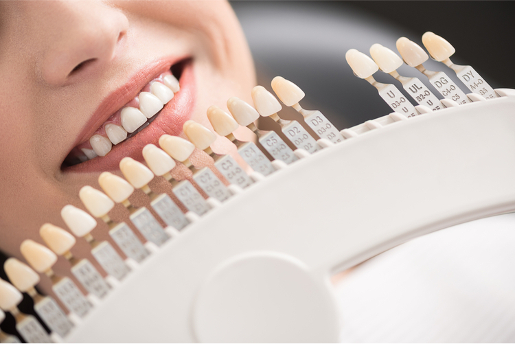 What you should know about dental crown procedure