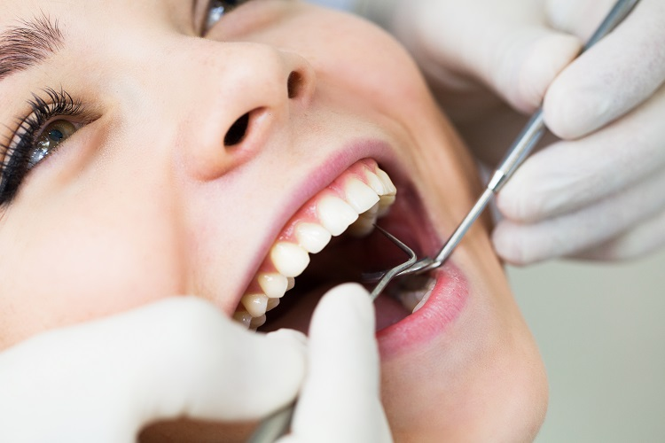 What are dental inlays and onlays?
