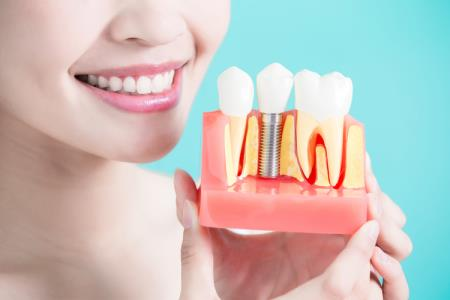 How painful are dental implants?