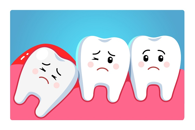 Impacted wisdom teeth and complications