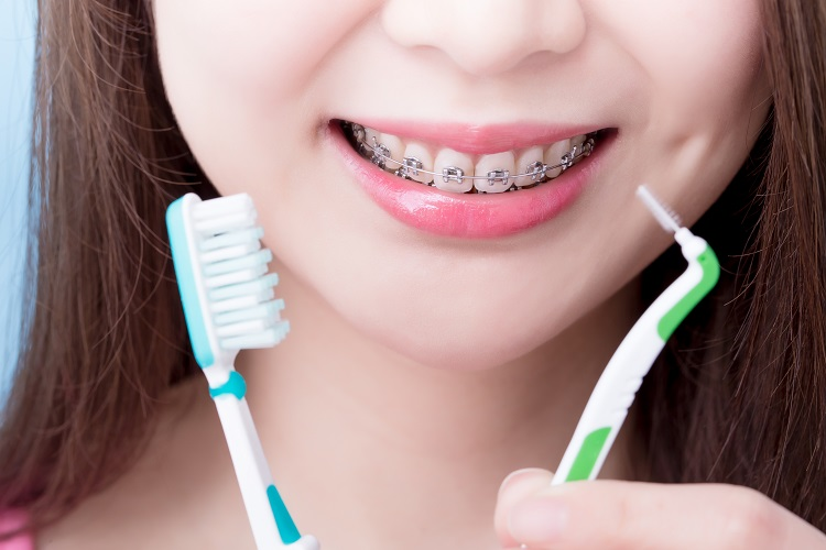 interdental brushes for braces
