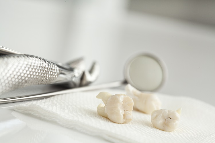 Is wisdom tooth extraction dangerous?