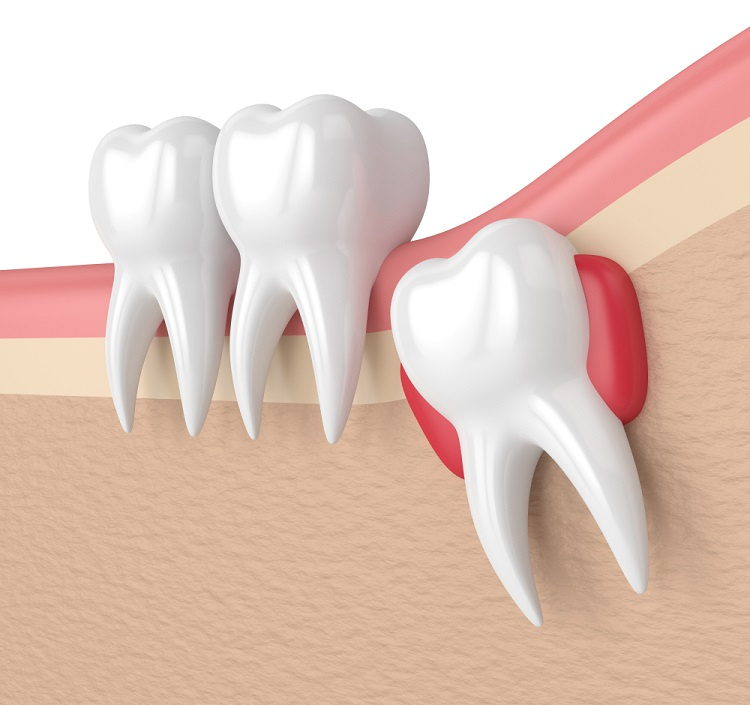 How long does wisdom tooth pain last? When to get wisdom teeth removed?