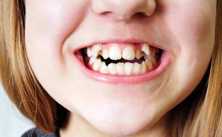 răng khấp khênh
