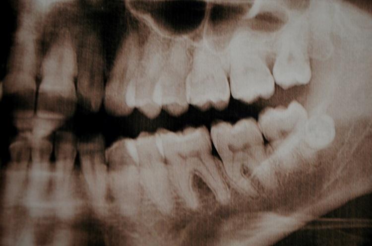 răng mọc quá nhiều