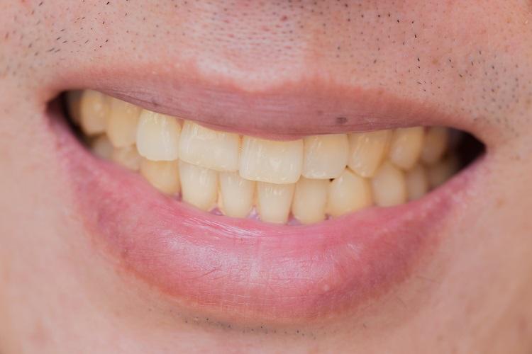 răng ố màu