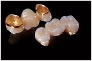 răng sứ vàng
