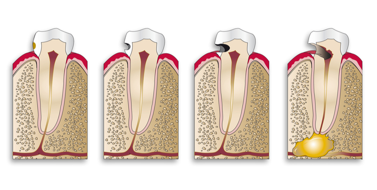 stages of tooth cavities