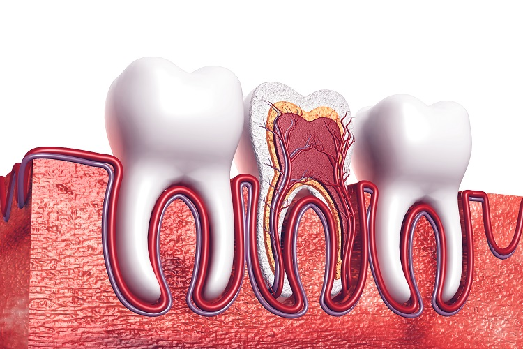 Standard root canal treatment