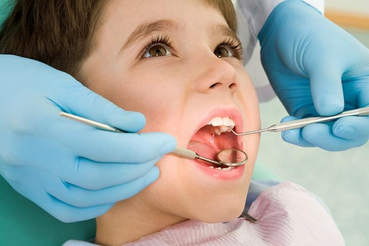 Răng sâu nên nhổ hay trám? Trám răng sâu có đau không?