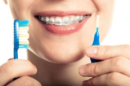 How do you keep your teeth clean when you have braces?
